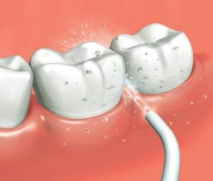 efecto de un irrigador dental